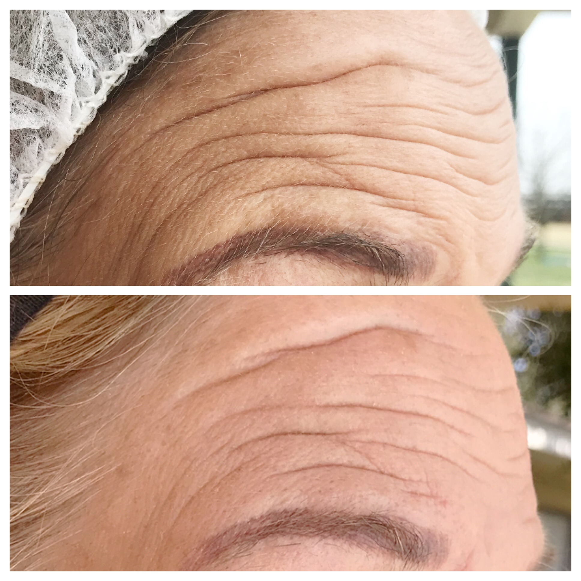 One treatment, 2.5 weeks healed. Deep wrinkles are have shortened and are more shallow. Some fine lines and smaller wrinkles have disappeared. Client has brow raised (flexed) in both images.