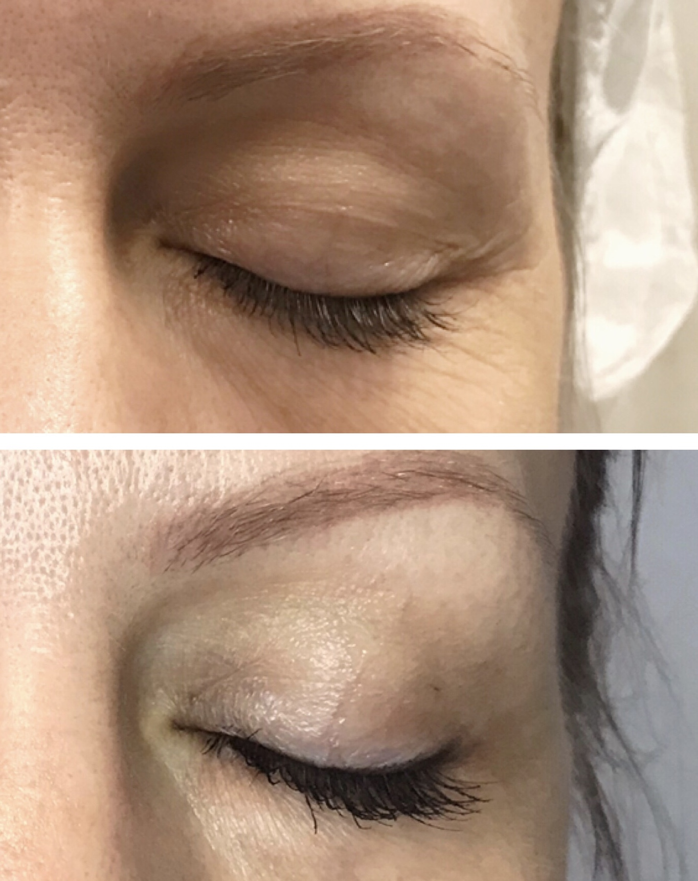 One treatment, 3 months healed. Eyelid and fine lines treatment. Less sagging skin on the lid, crows feet and fine lines reversed.