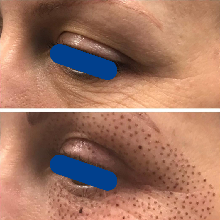 4 days post treatment.  3 months healed photo also posted in this gallery.  Client will continue to see improvements for 2-3 months post treatment.
