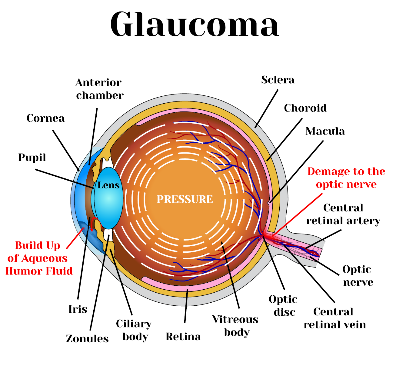 Glaucoma - Pressure in the Eye & Vision Problems