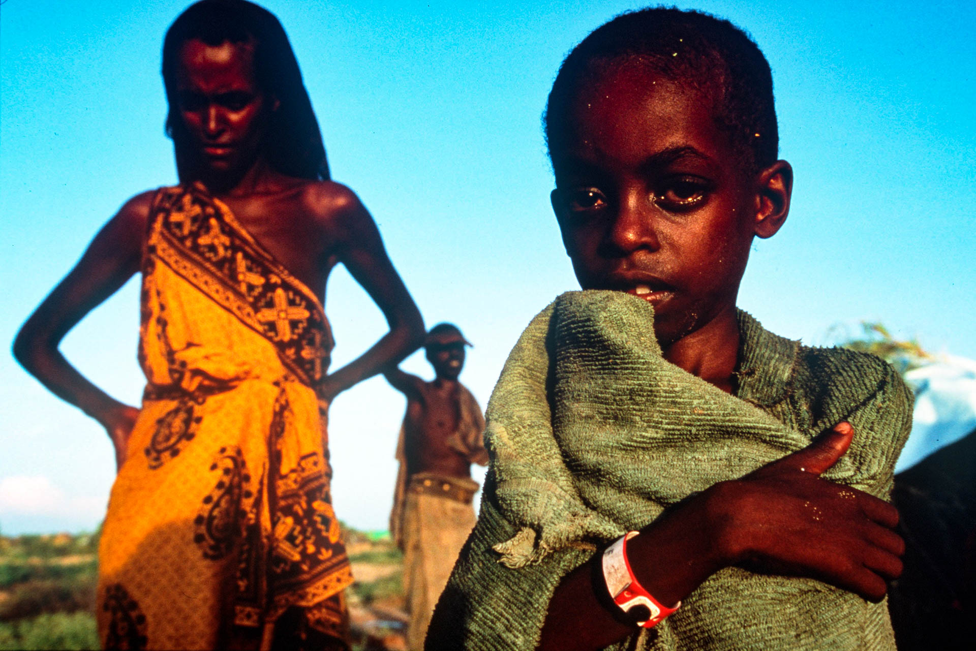 Bardera, Somalia - December 1992 The intense glance of a child who is longing for some food.