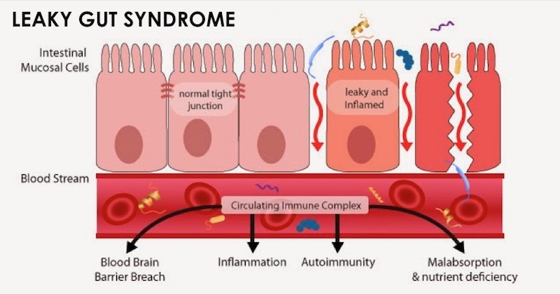 Leaky Gut & Blood Brain Barrier Breach in Autoimmune Disease and Mental Illness