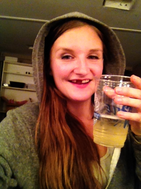 I think this is the only picture I have of me smiling with my missing teeth. This was post diagnosis... don't worry. That's a cider.
