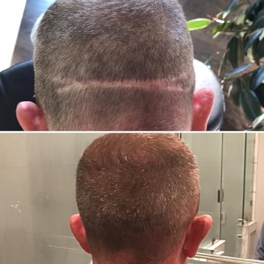 scalp micropigmentation | scar camouflage | hair transplant scar