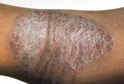 atopic eczema 1.jpg