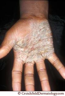 hand eczema 1.jpg