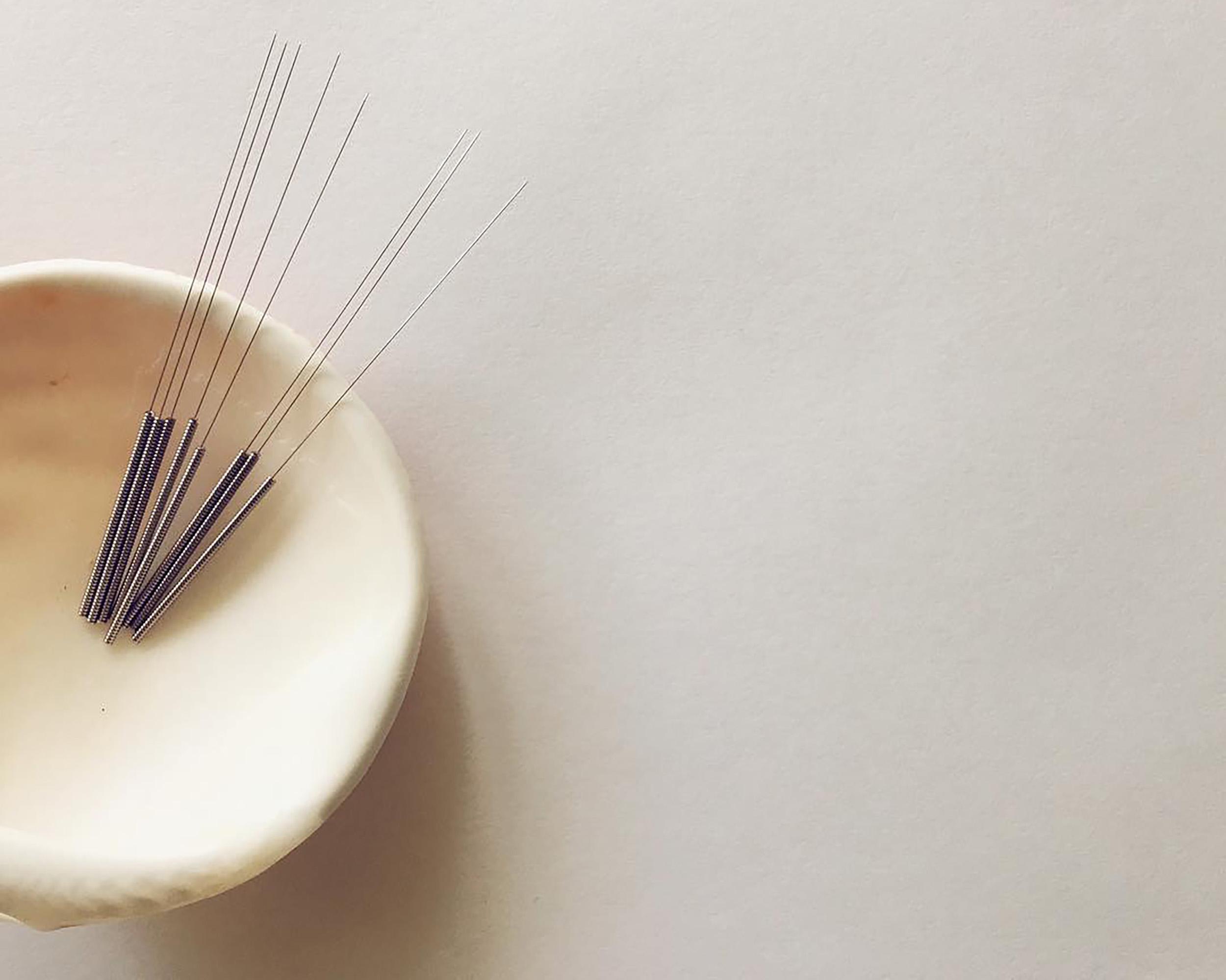 PC:  @prism.acupuncture