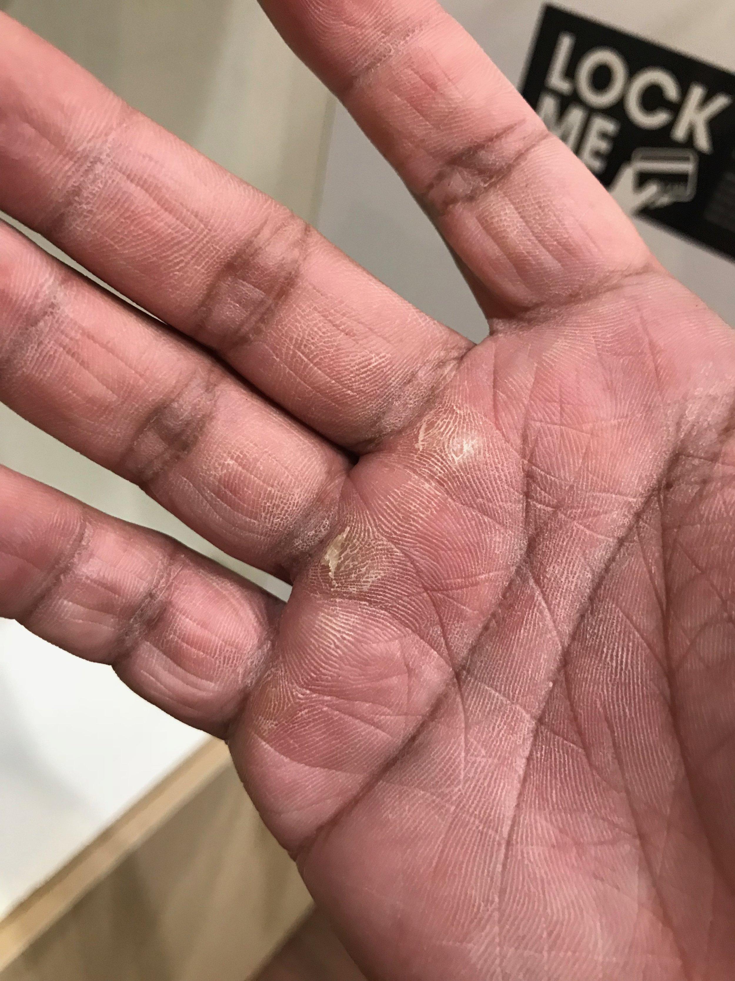 Weak ass hands after doing pullups