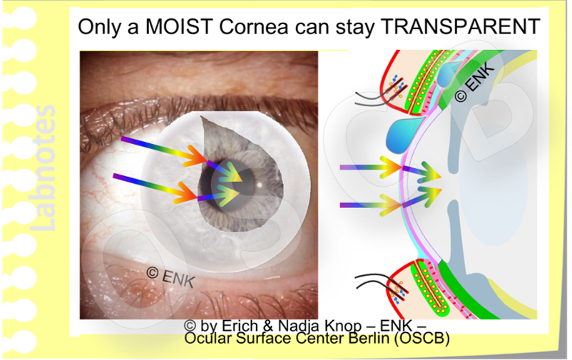 Only a MOIST Cornea can stay TRANSPARENT