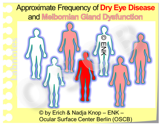 According to Epidemiological Studies roughly about one in six or seven individuals suffers from symptoms of a manifest Dry Eye Disease. The number of individuals who have Meibomian Gland Dysfunction, including the a non-obvious form (NOMGD) without subjective symptoms, is respectively thought to be much higher.