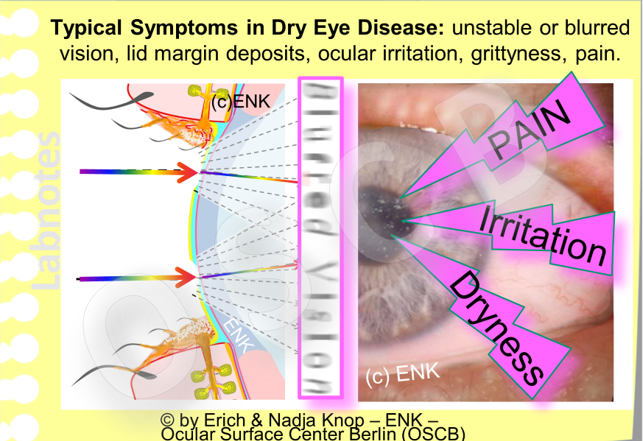 Some typical SYMPTOMS  in DRY EYE DISEASE concern those that can easily be verified and quantified, such as alteration of visual acuity, ... and those that involve very subjective feelings such as dryness, irritation and pain.