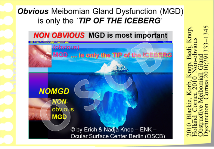 The initial type of MGD is  a symptomatic  - since it goes without symptoms. It is also clinically inconspicuous and is termed as   Non-Obvious MGD (NOMGD)  . A high proportion of elderly individuals conceivably has NOMGD which may already lead to an unnoticed destruction of the Meibomian glands inside the eye lids due to the increased pressure inside obstructed glands.