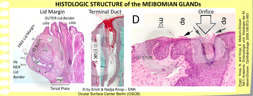 The terminal duct of the Meibomian glands is an ingrowth of the cornified surface epithelium. The wall of the Meibomian orifice (open arrow) therefore consists of fully cornified epidermis with luminal anuclear keratin squames. The shed epitheliallamellae are typically located inside the lumen of the orifice and can easily obstruct it when additional factors occur, such as Meibomian Lipids with increased melting point.