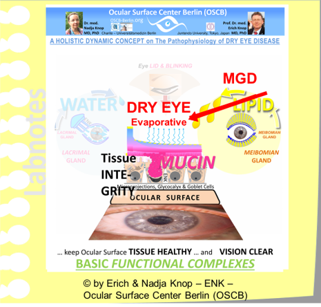 A DYSFUNCTION of the Meibomian Glands (MGD) leads, due to the LIPI-DEFICIENCY of the Tear FIlm, to EVAPORATIVE DRY EYE DISEASE - which is the most frequent form that is the primary causative factor in about four fifth of Dry Eye Patients..