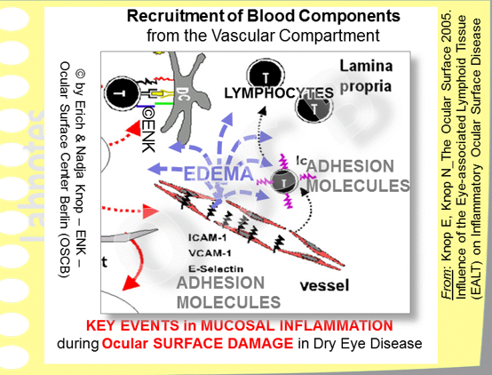 As an early key event in Inflammation,  blood components are recruited  to the site in order to support the inflammatory attempt of clearing the tissue from a pathogenic impact. This occurs by influence on the endothelial cells of the vessel walls.  Vaso-active amines  increase the permeability of the vessel walls leading to outflow of PLASMA, which is mainly water, into the tissue with subsequent formation of EDEMA.  Leukocytic protective CELLS from the vessels are also recruited by the help of adhesion molecules, that are expressed on the endothelium: in  acute  inflammation these are mainly phagocytic cells - in  chronic  inflammation they are mainly lymphatic cells that promote the progression into immune-mediated inflammation.