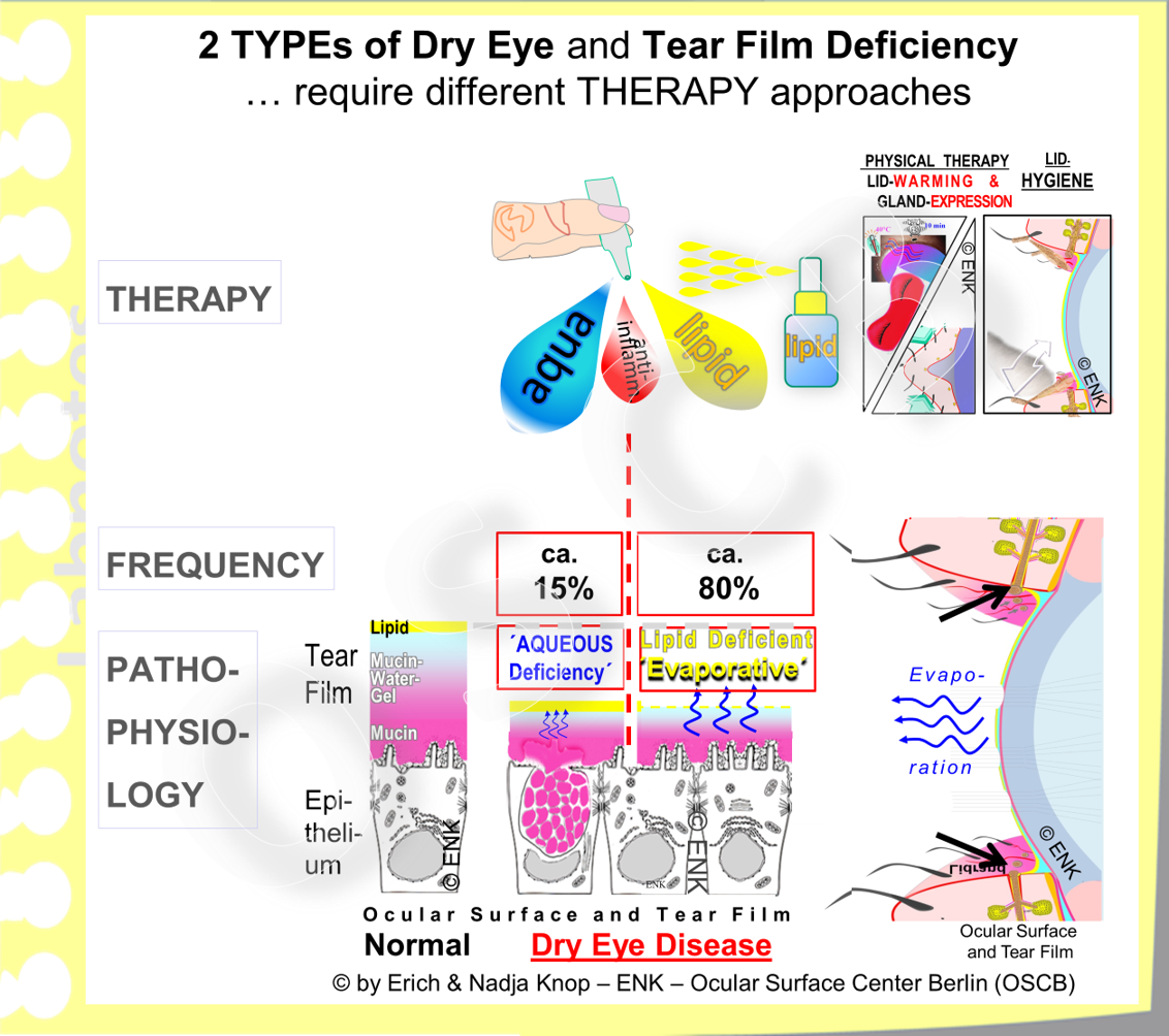 There are at least two main types of Dry Eye that both lead to a low tear volume but have a different pathophysiology background and thus different therapeutical approaches.