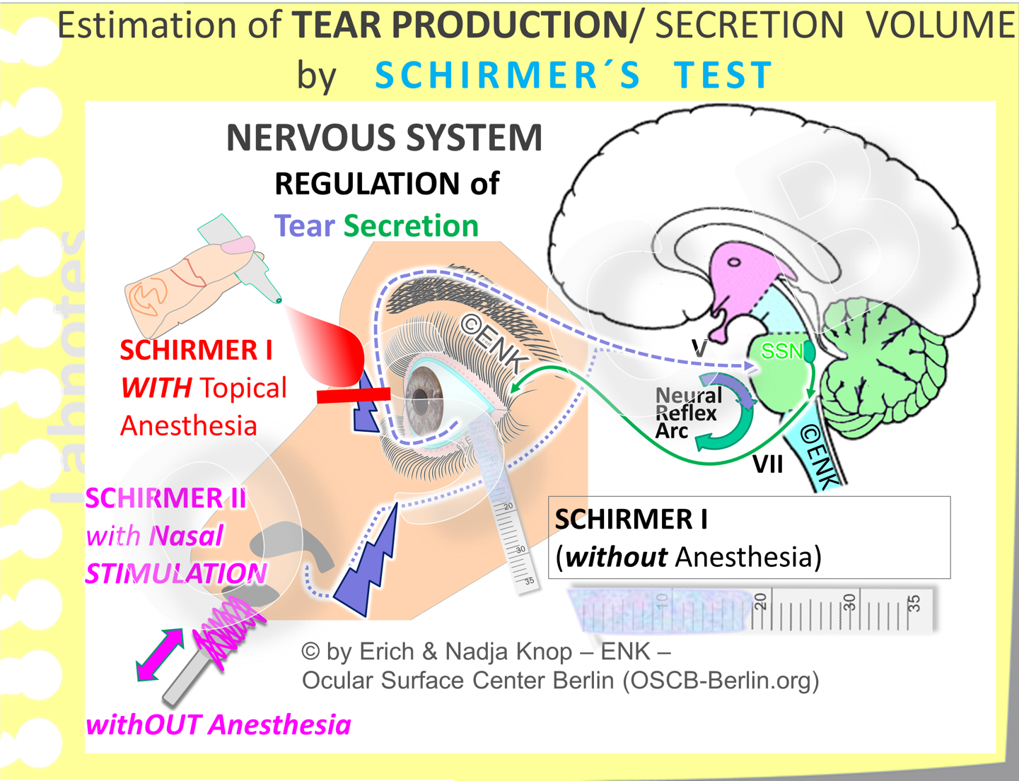 The aqueous lacrimal  SECRETION  volume is measured by SCHIRMER´s Test  that  collects the tears on a strip of filter paper , hanged over the lower temporal lid margin,  during a period of 5 minutes  . The ocular surface and the lacrimal glands are connected by a neural reflex arc for secretory regulation. It consists of the afferent sensory (blue interrupted line) and the efferent secreto-motor green solid line) nerves - together with the regulating brain stem including the efferent superior salivary nucleus (SSN dark green). There are different variations of the original test that either add a topical anesthesia or, instead, add a nasal mucosal stimulation.