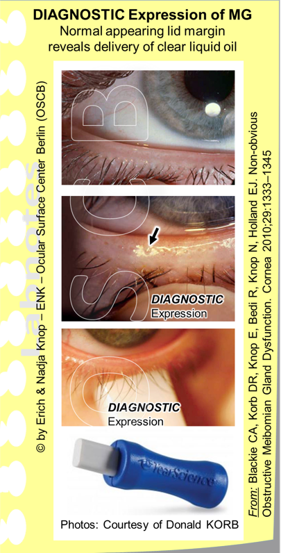 DIAGNOSTIC EXPRESSION Test . At a normal appearing lid margin (top images) it is not immediately clear whether the Meibomian Glands are functional or not. Functional means whether clear liquid oil can be   delivered   through an open orifice onto the lid margin with the mild pressure that occurs during a blink, since these holocrine glands are anyway continuously secreting lipids. The testing for patency of the gland orifices is thus the aim of the DIAGNOSTIC EXPRESSION Test. When mild pressure is applied onto the lid margin from the skin side - simply with a finger (middle image) or with a special standardized instrument ( Meibomian Gland Evaluator , MGE, TearSeience Inc - lower two images) a normal gland will ´  deliver  ´ clear oil as a little puddle onto the lid margin around the orifice (middle figure). An obstructed gland (MGD) in contrast will not deliver any lipids upon mild  diagnostic  expression.