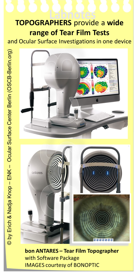 TOPOGRAPHERS are Multi-Purpose devices  that are stand-alone, are typically equipped with different illumination systems for different purposes and are connected to a computer with an appropriate software system for evaluation and storage of examination results. Certainly very useful for Dry Eye Diagnostics is the possibility to perform Non -Invasive Tear Film Break-Up (NI-BUT) measurements that allow the measurement of Tear Film stability without interfering with it by addition of marker any substances.
