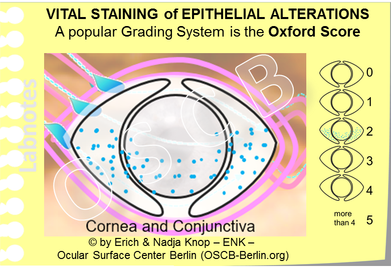 VITAL STAINING of Epithelial Alterations of the Ocular Surface  is typically  evaluated in a semi-quantitative fashion  by estimating the amount of staining, which is basically equivalent to single stained cells, by comparison with a chart that shown certain model grades. A popular Grading System is the OXFORD SCORE because this is easy to use and produces relatively reliable results. The staining intensity shown here schematically represents a medium (grade 2) staining on the Oxford Scale.