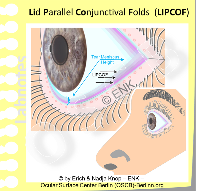 A schematic drawing of an eye with several Lid Parallel Folds (LIPCOF, indicated by arrows) superimposed over the posterior lid border inside the tear meniscus (blue arrows). ( The lid margins are slightly everted to show the free lid margin with the tear meniscus )