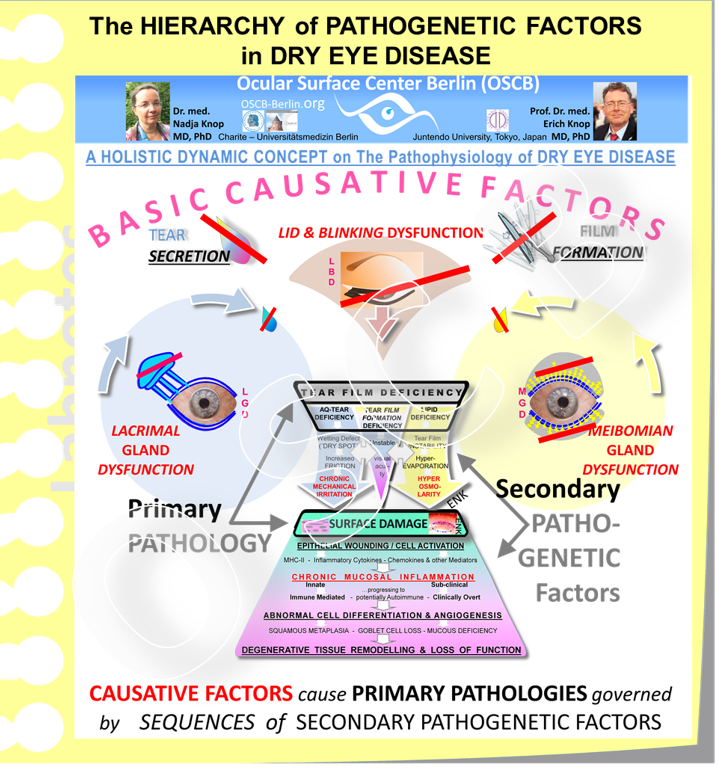 The schematic diagram depicts the pathophysiology in Dry Eye Disease - as it is explained in the new  HOLISTIC DYNAMIC CONCEPT on DRY EYE DISEASE . -  BASIC CAUSATIVE FACTORS  that  impair the formation of a stable tear film  - either by a Gland Dysregulation that leads to a deficiency of tear components and/or by an impairment of blinking that leads to an inability to form a stable FILM from the available tears -  cause the PRIMARY PATHOLOGY of Tear Film Deficiency .  This will  then, via secondary factors such as the discussed hyper-osmolarity, eventually  induce a SURFACE DAMAGE  of the Ocular Surface tissue, first of the epithelium, that can proceed to a chronic mucosal inflammation.