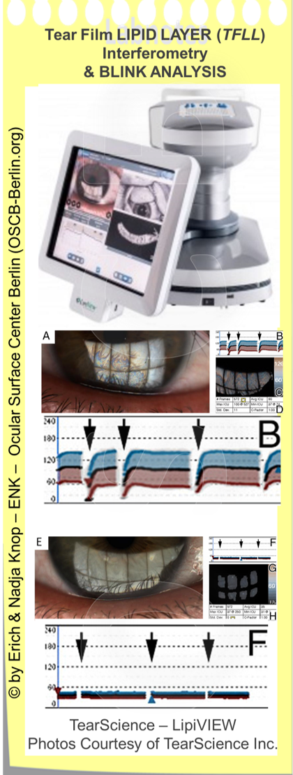 Die  Analyse des LIDSCHLAG-MUSTERS  ist im Prinzip ein wichtiger Teil der Untersuchung der Funktion der Augenoberfläche - wird aber dennoch durch verfügbare Analysegeräte typischerweise nicht unterstützt. Blinzeln/ Lidschlag ist von enormer Bedeutung für die korrekte Bildung des  Tränenfilms  und seiner Lipidschicht, da selbst eine ausreichende Tränenmenge durch eine intakte Drüsenfunktion nicht ausreicht für einen intakten FILM von Tränen vor der Hornhaut, wenn der Lidschlag gestört ist und zu selten oder inkomplett erfolgt. Inkomplette Lidschläge lassen sich nur schwer manuell erfassen, vor allem wenn der Patient dies bemerkt. Wesentlich einfacher und zuverlässiger ist es, wenn eine Aufzeichnung des Lidschlagmusters automatisch zusammen mit der Nicht-Invasiven Untersuchung der Tränenfilm-Ölschicht und der Tränenfilm-aufbruchszeit (BUT) erfolgt, wie dies hier für das LipiVIEW Gerät (TearScience Inc.) gezeigt ist.