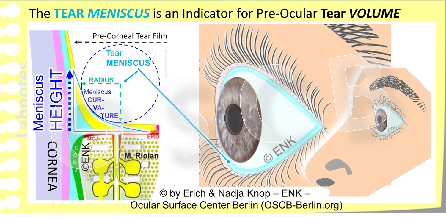 The  pre-ocular Tears  are lined at the upper and lower Lid Margins by a  fluid rim  that contains more tears and is termed the  TEAR MENISCUS . It sits on the posterior lid border and its  bottom is the    Line of Marx  , that, in turn, represents the  surface of the m   uco-cutaneous junction  ( MCJ  ) - a specialized epithelial transition zone that transforms the aqueous-wettable mucosa of the conjunctiva into the oily-dry skin. In cross-section (left image), the tear meniscus has a roughly triangular shape where the  back side is constituted by the cornea , or the conjunctiva, and the frontal  anterior side forms a parabolic curve . The filling and thus volume of the tear meniscus corresponds to the volume of the pre-ocular tears. Analysis of the meniscus thus provides surrogate parameters for the tear volume. With increasing tear volume the  apparent  height, i.e. the apparent upper  end  of the tear meniscus,  in creases and the curvature, i.e. the radius of the circle that best approximates the parabolic anterior surface of the tear meniscus, becomes larger (please see the diagram). With  de creasing tear volume the opposite changes occur. Decreased tear volume typically causes  increased m   echanical frictio   n . When the decreasing tear meniscus is due to increased evaporation, which is the most frequent case this also leads to tear  h   yper-osmolarit   y  (The relative thickness of the tear film and of its lipid layer are exaggerated in the drawing, relative to the tissue of the lid margin).