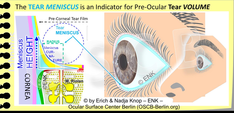 Der  prä-okulare Tränen -FILM   wird am unteren und am oberen Lidrand begrenzt durch einen verdickten Flüssigkeitsrand, der durch Oberflächenkräfte der Tränenflüssigkeit entsteht und Tränensee oder  Tränen-MENISKUS  genannt wird. Der Meniskus liegt auf der hinteren Lidkante und sein ´Boden´ ist die  MARX´sche Linie , die wiederum die Oberfläche der  Haut-Schleimhaut-Übergangszone (Engl.:MCJ)  bildet. Die MCJ ist eine spezialisierte Epitheliale Übergangszone, in der sich die wässrig-feuchte Schleimhaut der Konjunktiva umwandelt in die ölig-trockene Epidermis der Haut, die hier beginnt und nach vorne weiter zieht. Im Querschnitt (linkes Bild) hat der Tränenmeniskus eine etwa dreieckige Form, wobei die Rückseite von der Hornhaut oder Bindehaut des Augapfels gebildet wird und die  Vorderwand bildet eine parabolische Kurve . Die Füllung und daher das Volumen der Tränen im Meniskus korrespondiert mit den Tränen im Tränen-FILM. Die Füllung des Meniskus kann daher als Surrogat Parameter für Tränen im Tränenfilm verwendet werden. Daher gibt die Bestimmung der HÖHE des Meniskus einen guten Anhalt für die Tränenmenge - mit der Bestimmung der Kurvatur (als  Radius  des Meniskuskreises) lässt sich die Tränenmenge sehr genau bestimmen.  (In der schematischen Zeichnung links ist die Dicke des Tränenfilms und der Ölschicht (gelb) auf seiner Oberfläche viel zu dick angeben relative zum Gewebe ... um den Tränenfilm überhaupt darstellen zu können.)