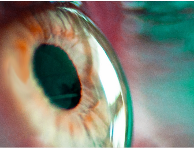 CORNEA & EyeBall