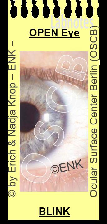 OSCB-Berlin.org_Augenoberfläche_Ocular Surface for HA High Viscosity vs. Low Viscosity.png