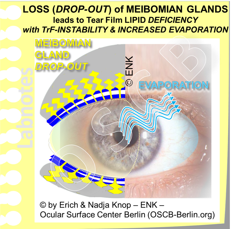 OSCB-Berlin.org_LOSS (DROP-OUT) of MEIBOMIAN GLANDS leads to Tear Film LIPID DEFICIENCY with TrF-INSTABILITY and INCREASED EVAPORATION_TrF HELLER.png