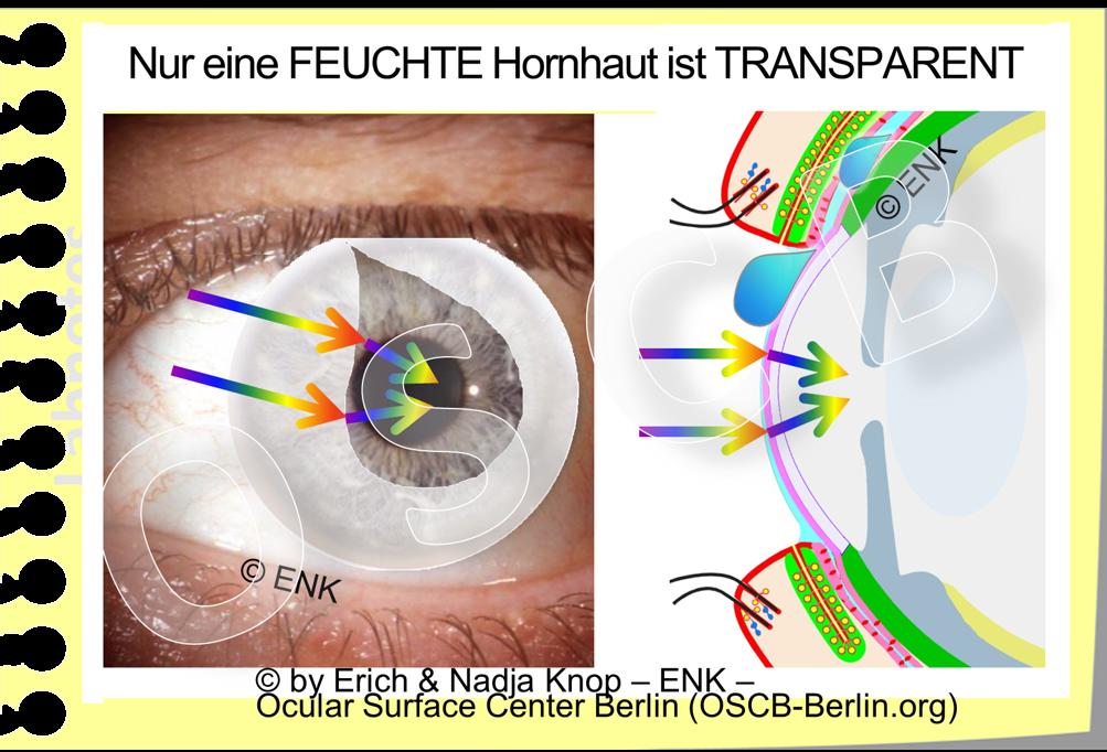 TRÄNEN  bewirken die  FEUCHTIGKEIT  der Augenoberfläche, die eine  Vorbedingung  ist für ihre Gesundheit und Intaktheit - und daher auch für die  TRANSPARENZ  der Hornhaut/ Kornea.