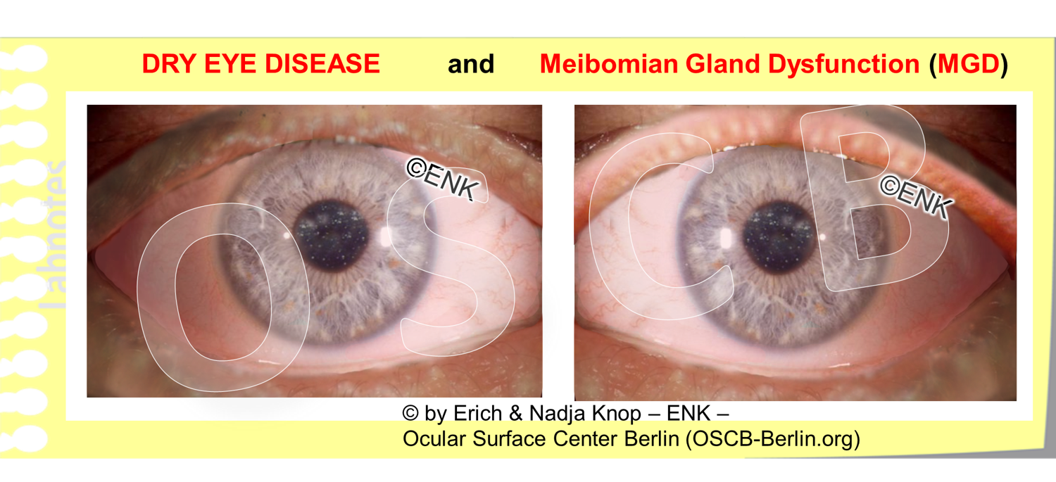 OSCB-Berlin.org_DRY EYE DISEASE and Meibomian Gland Dysfunction (MGD).png