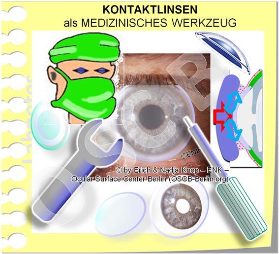 OSCB-Berlin.org_(c)ENK_Trockenes-Auge,-Dry-Eye-Disease,-Contact-Lens,-Kontaktlinse__Kontaktlinen als MEDIZINISCHES WERKZEUG_GANZ OHNE Text_jpg6 20 DEUTSCH_.jpg