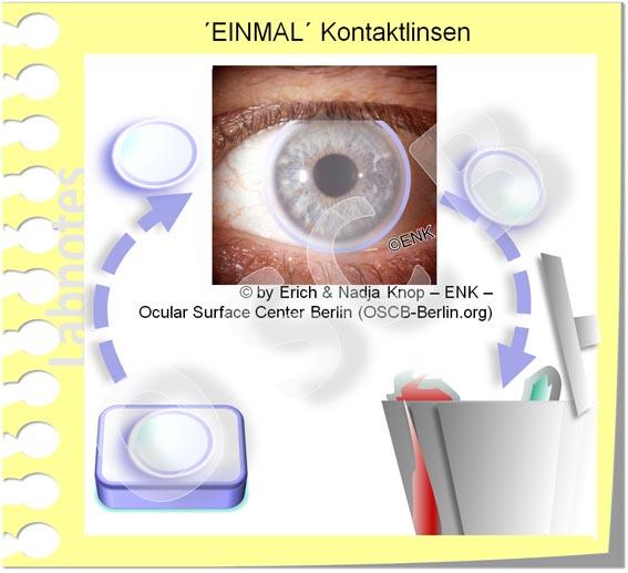 OSCB-Berlin.org_(c)ENK_Trockenes-Auge,-Dry-Eye-Disease,-Contact-Lens,-Kontaktlinse__TAGESTRAGE KONTATKLINSEN_jpg6 20 DEUTSCH_.jpg