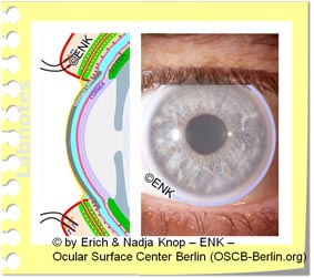 KONTAKTLINSEN und Augenoberfläche
