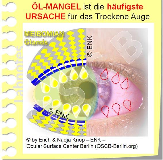 OSCB-Berlin.org_(c)ENK_Trockenes-Auge,-Dry-Eye-Disease,-Contact-Lens,-Kontaktlinse__ÖL-MANGEL ist die häufigste Ursache für ein Trockenes Auge_20_.jpg