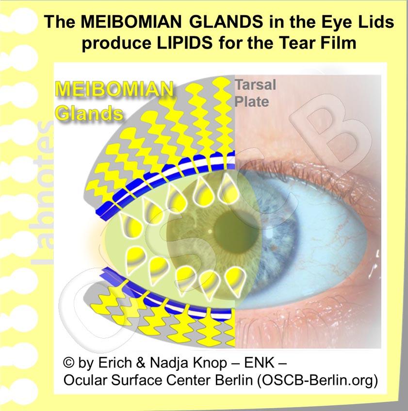 OSCB-Berlin.org_2_MEIBOMDRÜSE_The MEIBOMIAN GLANDS in the Eye Lids produce LIPIDS for the Tear Film (Zeichnung+Foto)_4 mit ÖL-Schicht.jpg