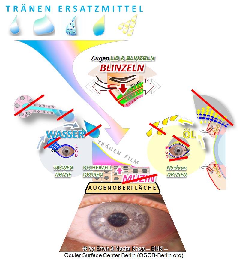 Augenoberfläche OSCB SCHEMA Trockenes Auge, Dry Eye_3gr+Text 3NEU.jpg