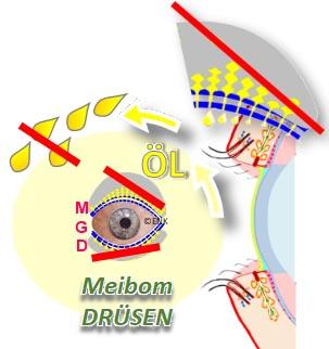BildELEMENT ÖL MEIBOMdrüse Trockenes Auge, Dry Eye .jpg