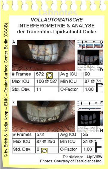 VOLLAUTOMATISCHE INTERFEROMETRIE und Analyse der Tränenfilm-Lipidschicht Dicke_www.OSCB-Berlin.org_20_.jpg