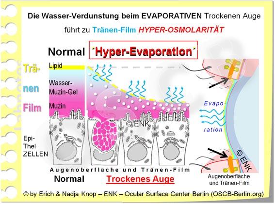 Bei Erhöhter Verdunstung (blaue Pfeile) des Tränenwassers werden die gelösten Stoffe (Salze und Proteine - in der Abb. als weisse Kugeln) stärker konzentriert. Dies führt zu lokal dünnem mit erhöhter Salzkonzentration (Hyperosmolarität), und damit zu Augen Brennen und  Zellschädigung .