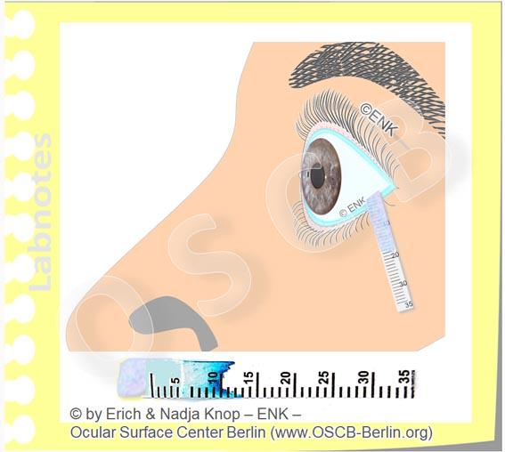 SCHIRMER-Test, Tränen, Trockenes Auge, Sicca, Tears, Tear Film Dry Eye Disease_Ohne Text mit STREIFEN_20_(c) ENK, www.OSCB-Berlin.org__.jpg