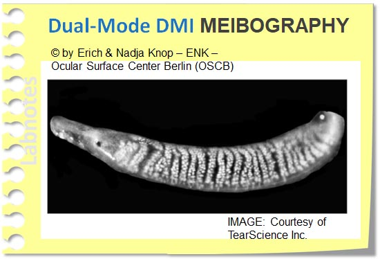 Dual Mode DMI Meibography_LipiVIEW und LipiSCAN, TearScience_.jpg