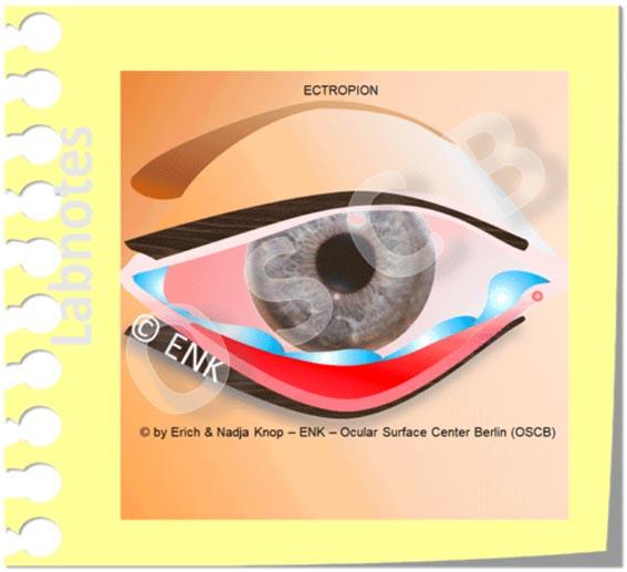 Das ´feuchte´  Trockene Auge