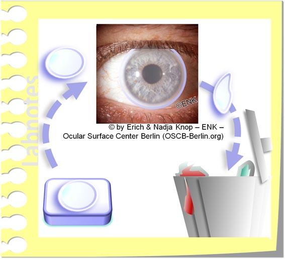OSCB-Berlin.org_(c) ENK- Erich and Nadja Knop_Kontaktlinsen TAGEStragelinsen, Wegwerf Kontaktlinsen, Disposable Contact Lenses_20_.jpg