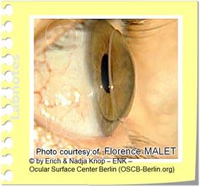 Eine kleine formstabile Kontaktlinse auf der Hornhaut