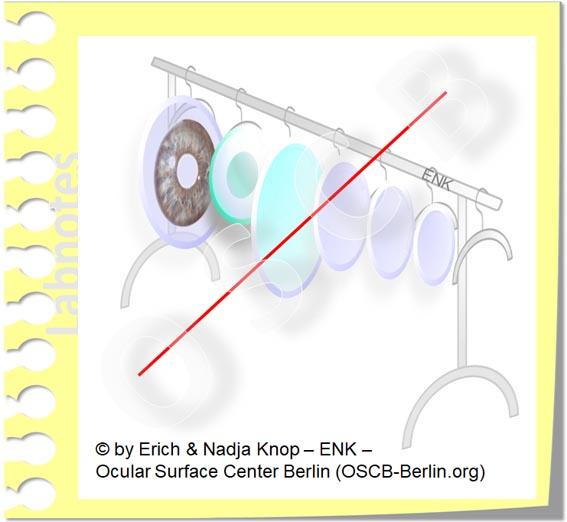 OSCB-Berlin.org_(c) ENK- Erich and Nadja Knop_Contact Lenses must be fitted - there is no one fits for all_Kontaktlinsen müssen angepasst werden und nicht von der Stange gekauft werden_20_.jpg