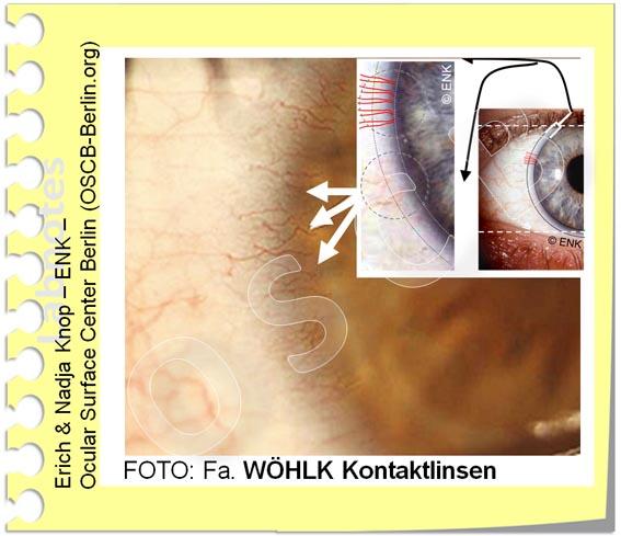 Bei  Sauerstoffmangel der Hornhaut durch eine daraufliegende Kontaktlinse  wachsen die Gefässe des Randschlingennetz vom Hornhautrand zur Mitte vor